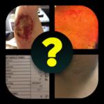 4 imágenes – 1 enfermedad APK
